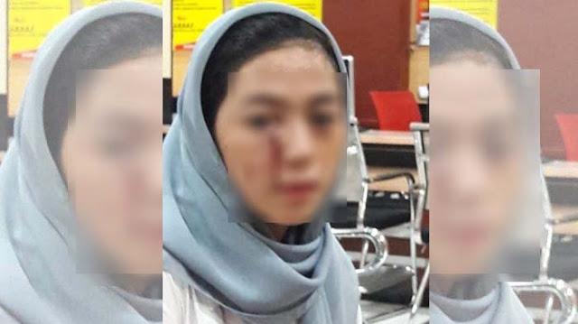 Wanita Ini Diduga Korban Kekerasan Pemain Persela