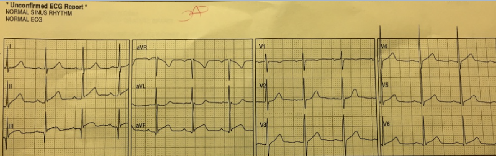 dr smith s ecg blog should emergency physicians be interrupted by