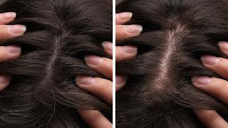 حيل لإخفاء خصلات الشعر الأبيض دون صبغة