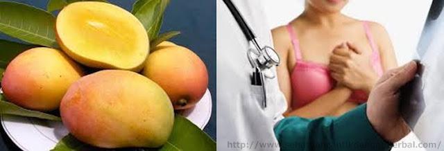 Khasiat buah mangga untuk mengobati kanker payudara
