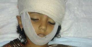Innalillah... Gadis 12 Tahun Dibunuh Sniper Milisi Syiah Houthi di Baydha