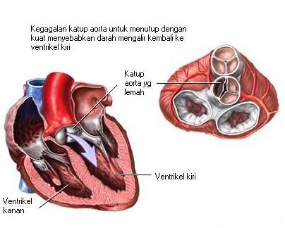 Ciri Ciri,Gejala,Penyebab Penyakit Jantung & Obat Herbalnya