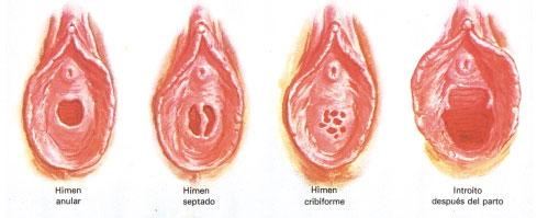 Doble tratamiento de pene - 1 7