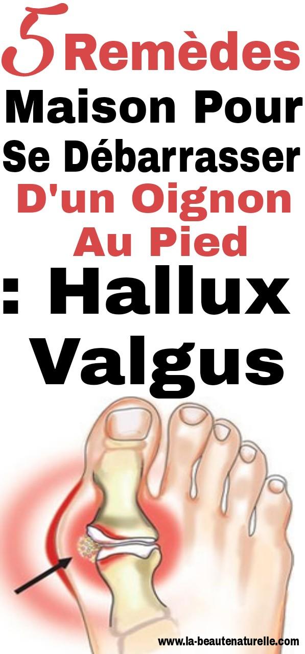 5 Remèdes maison pour se débarrasser d'un oignon au pied : hallux valgus