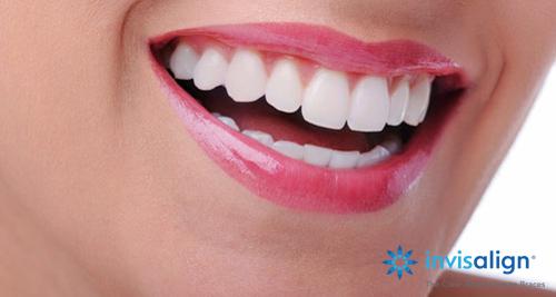 Niềng răng Invisalign