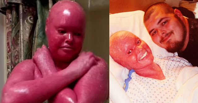 Image result for wanita berkulit merah