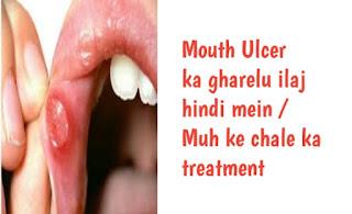mouth ulcer ke gharelu ilaj