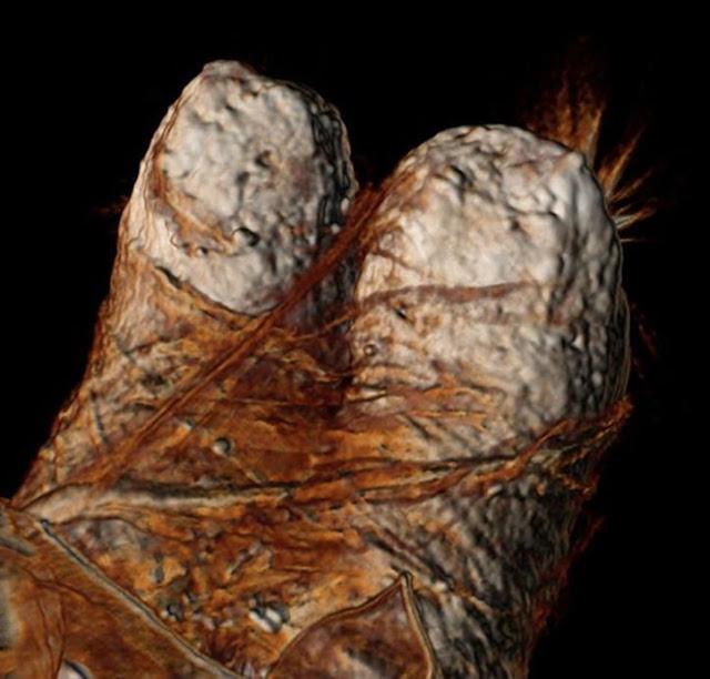 Imagen del escaneo tridimensional mediante tomografía computadorizada de los pies de Ramsés III, en la que se observan los gruesos vendajes de lino empleados en su momificación.