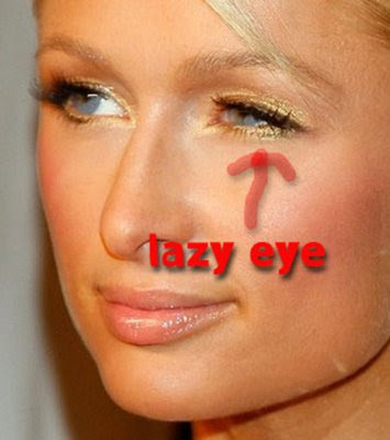 Correcting Lazy Eye In Adults 58