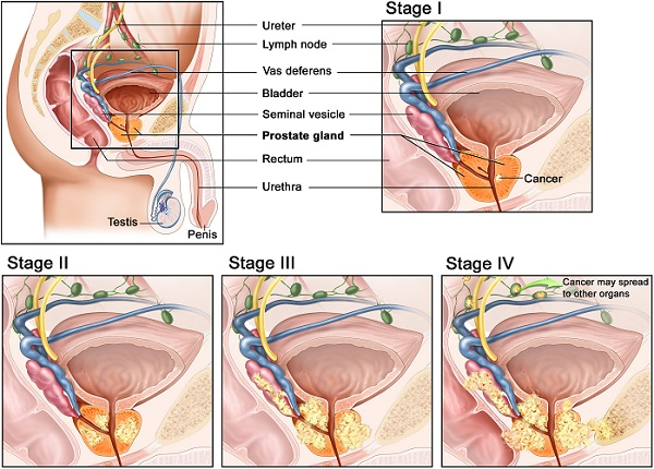 Kenali 4 Tanda Kanser Prostat