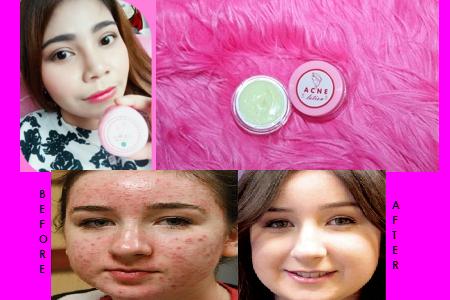 Cream Yg Bisa Menghilangkan Jerawat Dan Bekasnya  BPOM