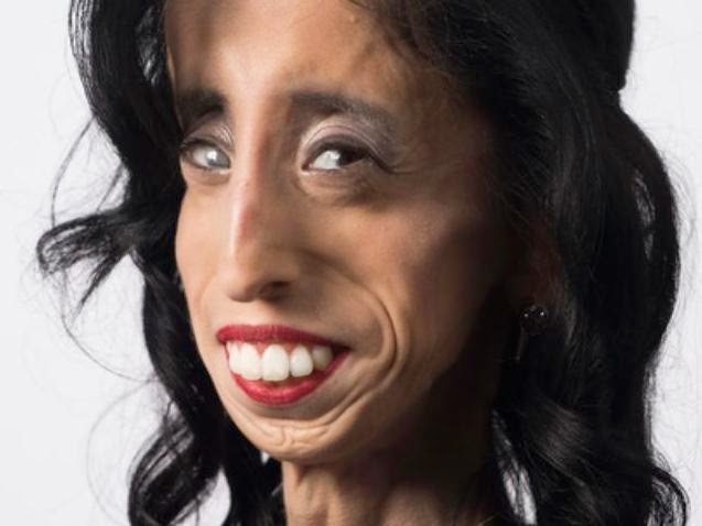 The Flying Tortoise: Lizzie Velasquez Has Been Called The ...