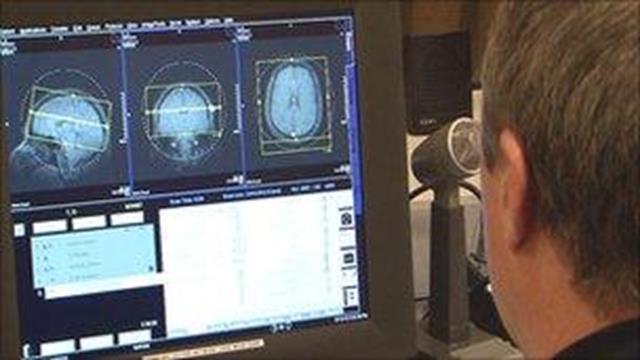 Nghiên cứu khoa học cho thấy Thiền định làm cấu trúc não thay đổi