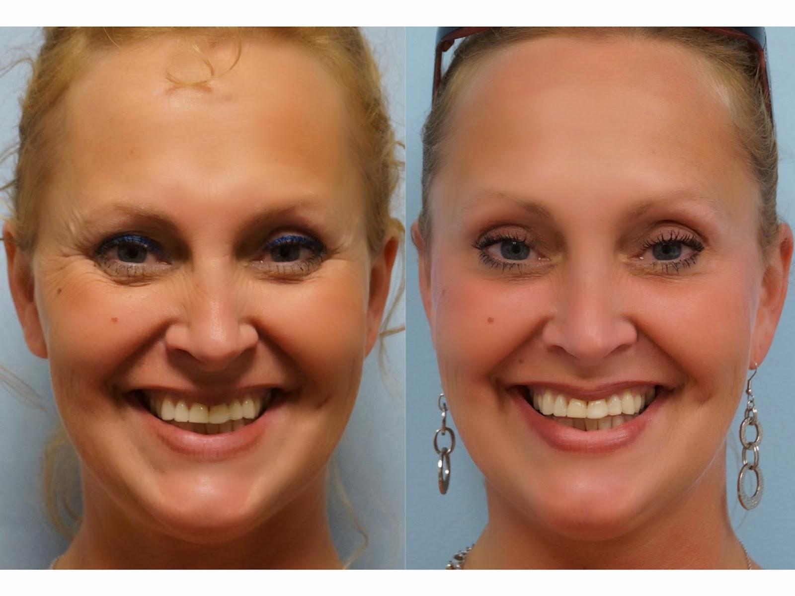 Facial Plastic Surgery: Botox browlift, Nonsurgical ...