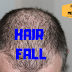 Hair Fall - Reasons, Causes, Symptoms & Treatment