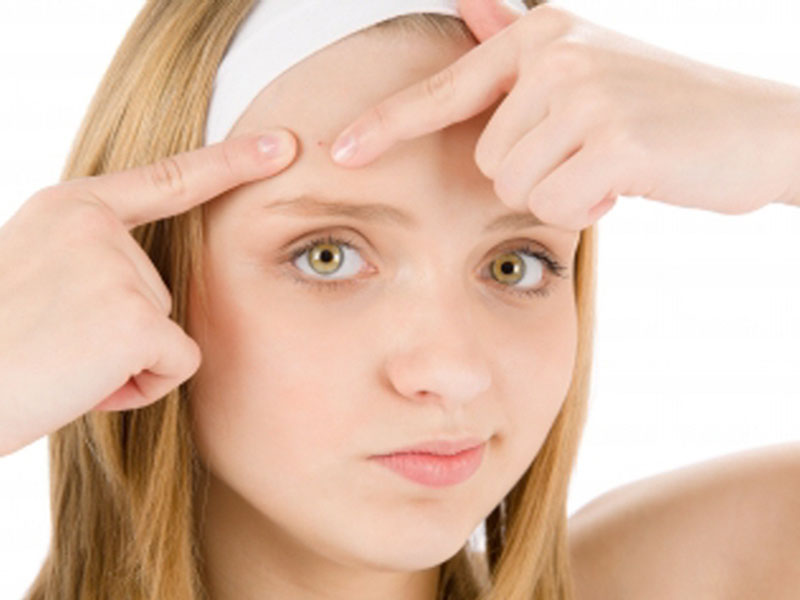 pimples problem solution by natural home remedies needof lifepimples problem solution by natural home remedies