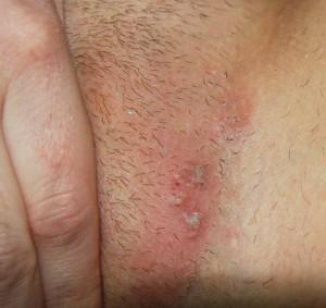 Obat Gatal Bintik Hitam Pada Selangkangan Dan Bokong