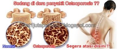 Obat Herbal Osteoporosis ini TERUJI & TERBUKTI MANJUR Menyembuhkan Osteoporosis