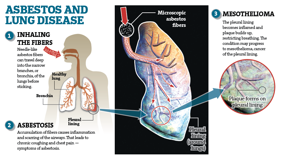 Asbestos Fibers In Lungs : What is the latest mesothelioma disease information