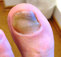 onychomykose-nagelpiz-behandeln-jenncosmetic