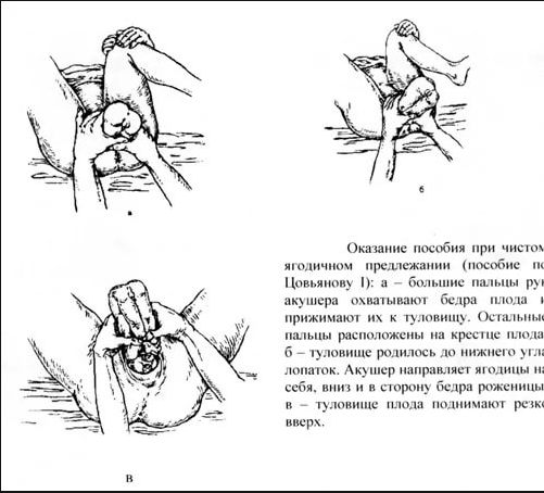 The Tsovyanov maneuvers for frank and footling breech