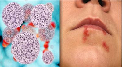 cara mengobati dan gejala herpes