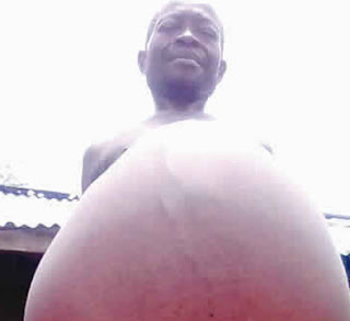 nigerian man whose belly won't stop growing imo state