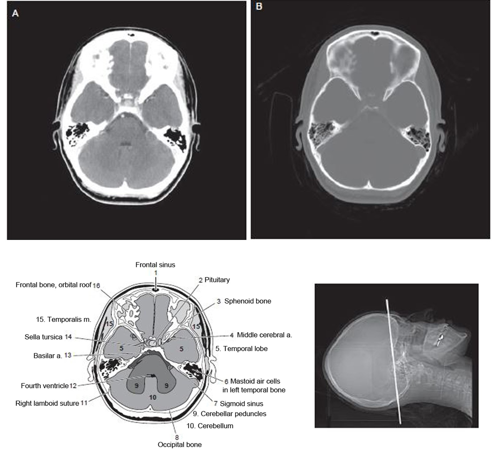 ct scan of brain militarybraliciousco