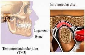متلازمة المفصل الفكي الصدغي Temporomandibular joint syndrome