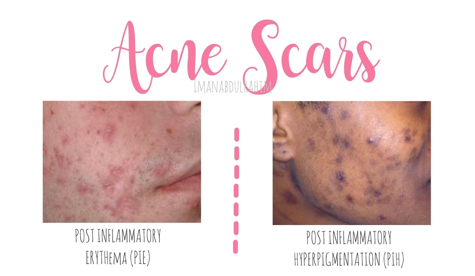 How To Reduce Acne Scars Iman Abdul Rahim