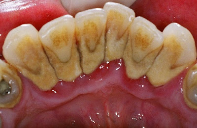 sau khi cạo vôi răng có cần kiêng gì không -2