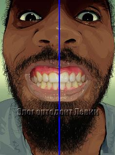 Правильная средняя линия зубов