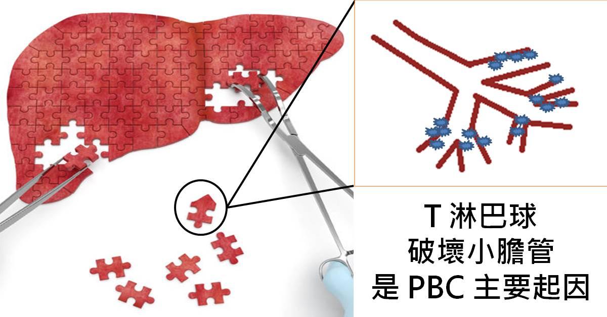 葉人豪 醫師: 不再是絕癥的「原發性膽道性膽管炎」(PBC)