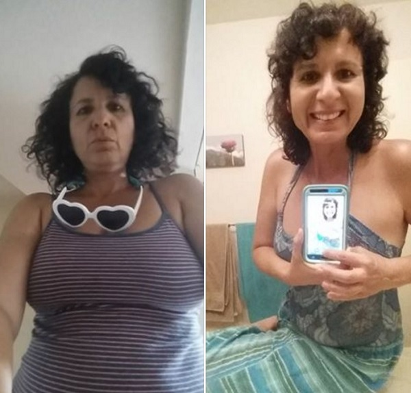 Expected weight loss after gastric sleeve surgery