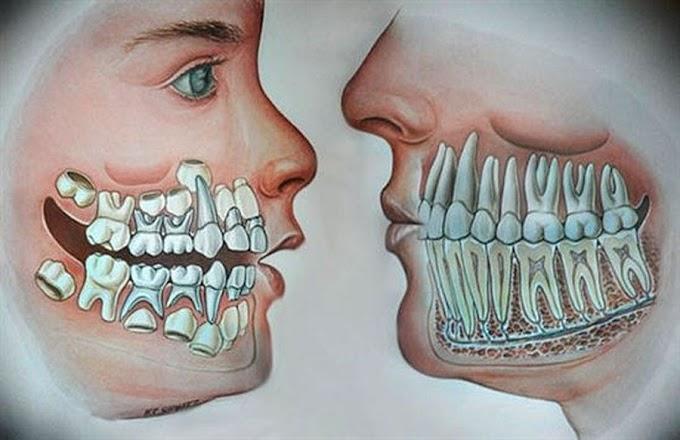 ODONTOPEDIATRIA: Dentição Mista