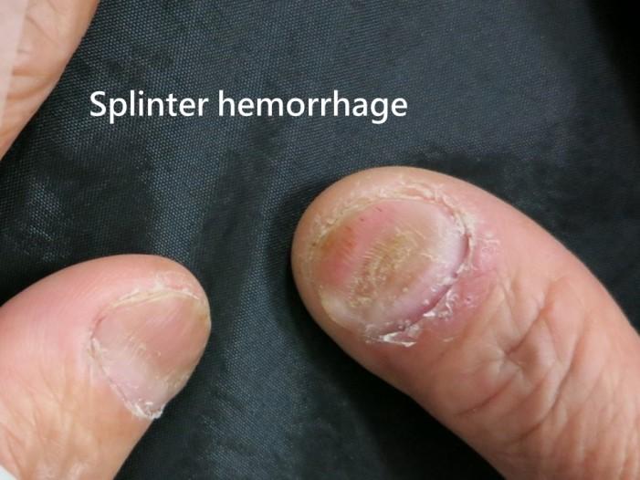 指甲乾癬-線狀出血