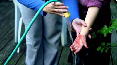 cara menghilangkan bekas luka tersiram air panas