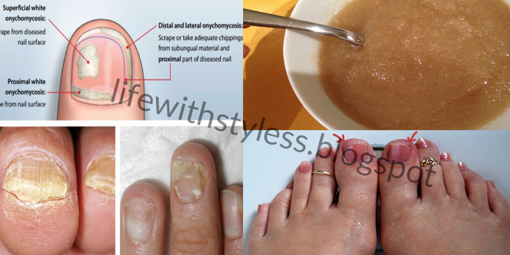 Natural Home Treatment for Fungal Nail Infection | Life With Styles
