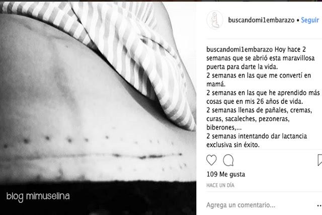 cicatriz cesárea la realidad de ser madre imagenes duras de maternidad blog mimuselina