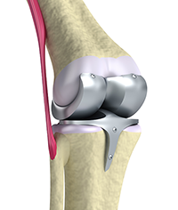 Titanium Knee Joints