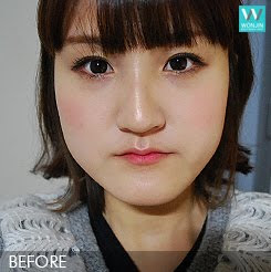 짱이뻐! - Got Chance To Do Korean Face Contour and Two Jaw Surgery