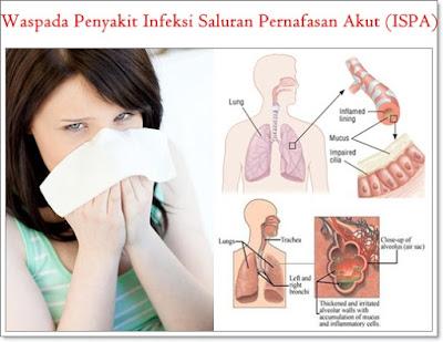 Pengobatan Herbal Infeksi Saluran Pernafasan Akut (ISPA)