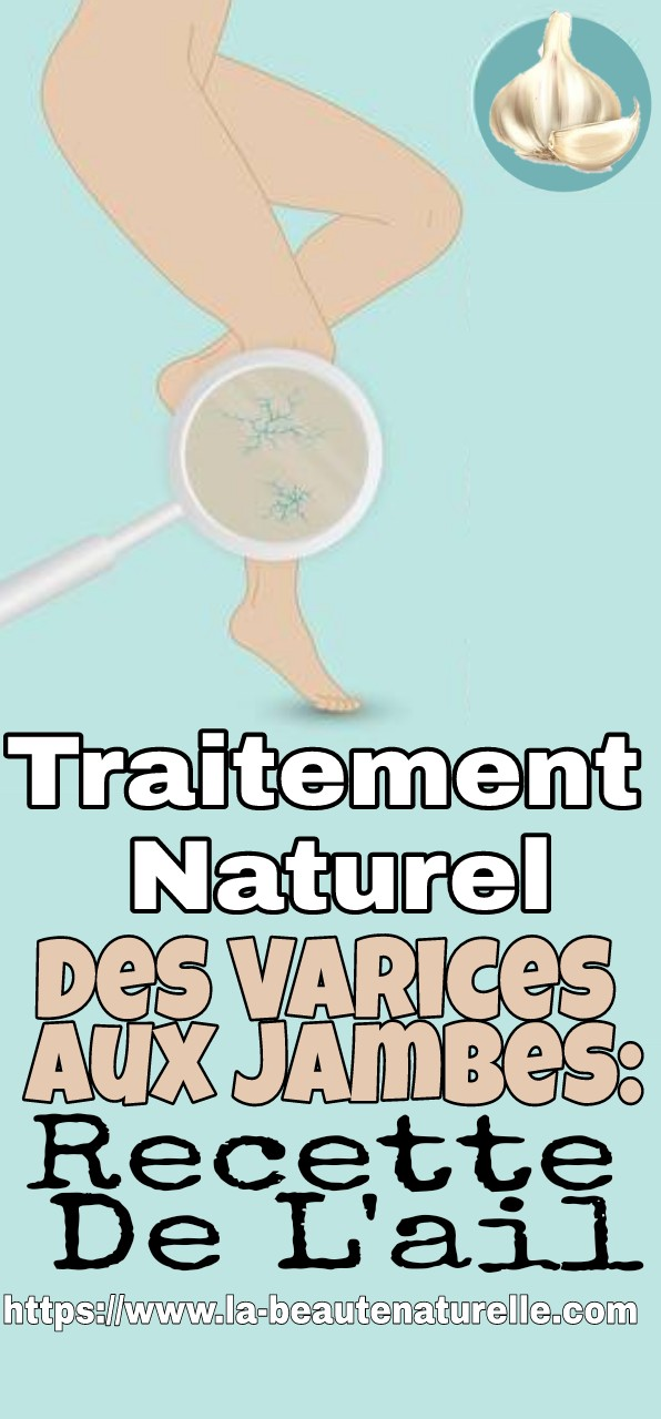 Traitement Naturel Des Varices Aux Jambes: Recette De L'ail