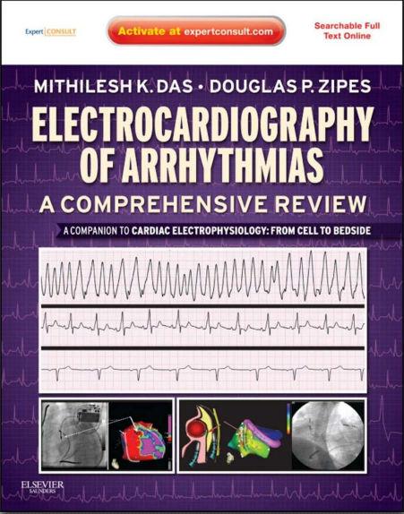 Electrocardiography of Arrhythmias-A Comprehensive Review-A Companion to Cardiac Electrophysiology (Apr 12, 2012)