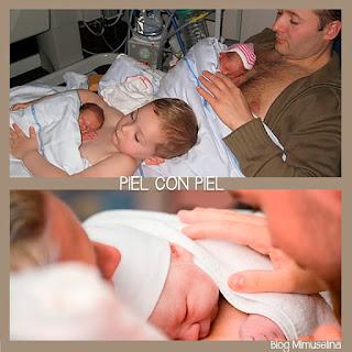 blog mimuselina piel con piel prematuros