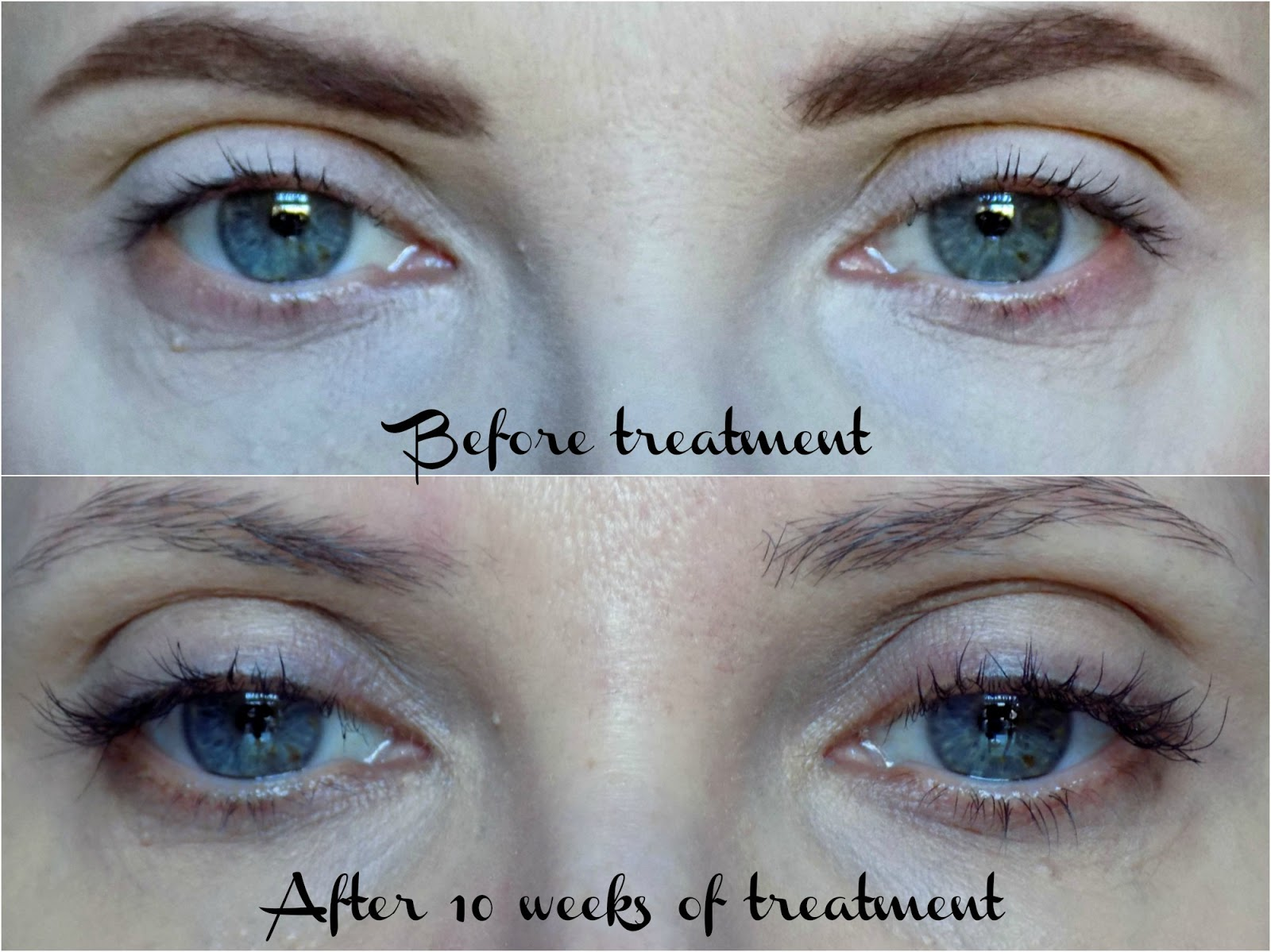 NYK1 Lash force Eyelash Serum - before & after photos