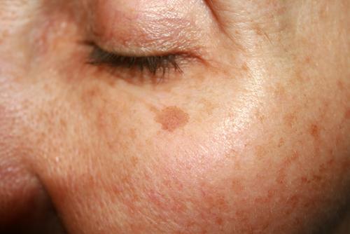 Cómo eliminar las manchas por la edad en la piel.