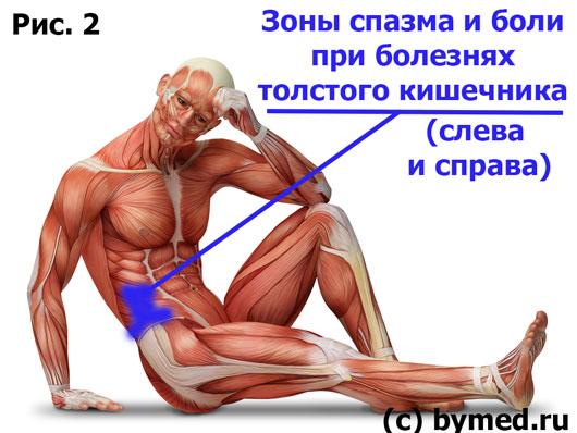 Зоны толстого кишечника