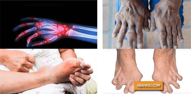 Gout Arthritis Asam Urat pada Sendi Kaki dan Tangan