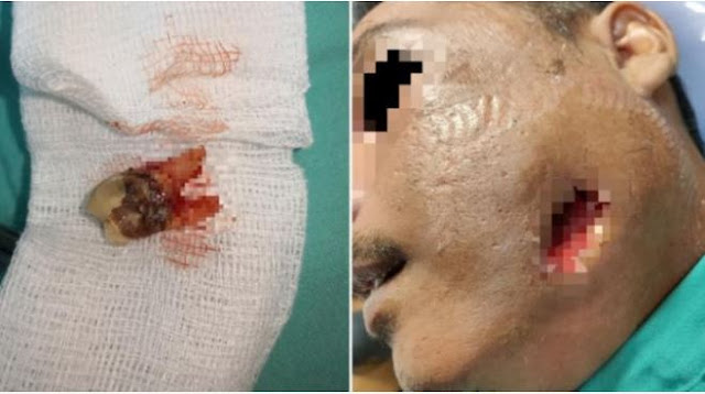 Pipi Pria ini Bolong Setelah Pakai  Minyak Rem Untuk Obati Sakit Gigi